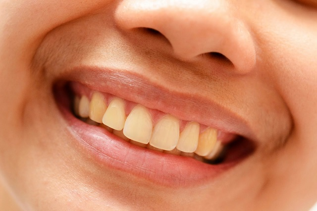 From shrinking teeth to thinning eyebrows. What your.